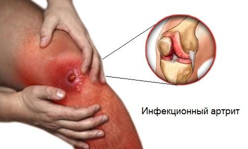 Инфекционный артрит: симптомы и лечение патологии