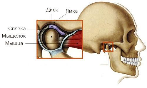 Cheljustno - licevoj artrit