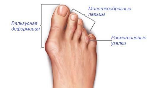 porazhenie stopy artritom