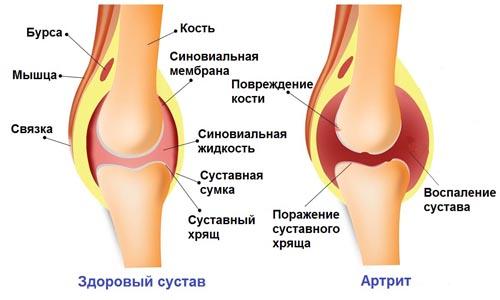 razvitie artrita kolennogo sustava