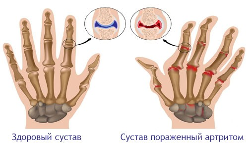 vospalenie sustavov pri artrite