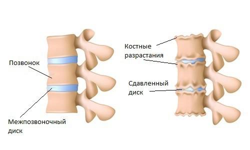 симптомы артроза позвоночника