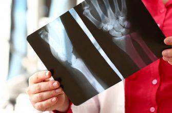 arthritis examination